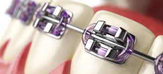 Image result for Why braces and treatment are better than surgery