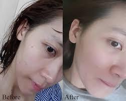 Serum Detox Acnes For Skin Ngăn Ngừa Mụn Doctor Queen, giá tốt nhất  650,000đ! Mua nhanh tay! | Bigomart.Info