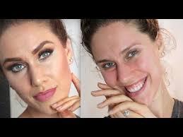 prevent acne breakouts