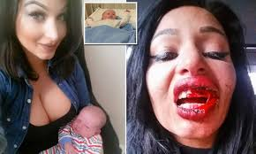 Pregnant model Ava Van Rose viciously assaulted and baby put in hospital |  Daily Mail Online