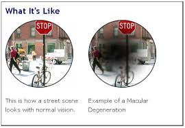 Image result for free pics of macular degeneration