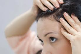 itchy scalp besides head lice