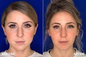 slimming down a round face