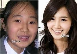 korean plastic surgery celebrities
