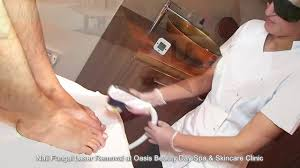laser nail fungal removal in dublin