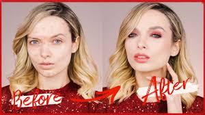 margot robbie acne coverage makeup