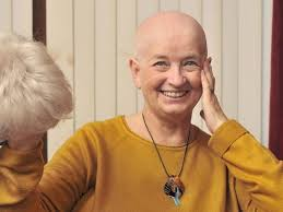 Scarborough's Mayoress shaves her head following cancer diagnosis ...