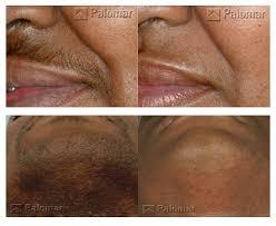 laser hair removal washington dc