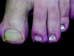 a guide to treatments for onychomycosis
