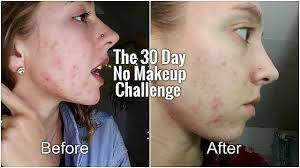 30 day no makeup challenge before and