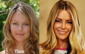 jennifer hawkins plastic surgery before