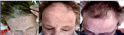 alopecia areata in a patient with