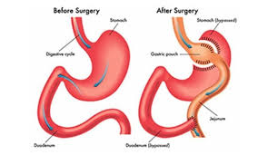 gastric byp lap band center of