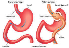 weight regain after gastric byp
