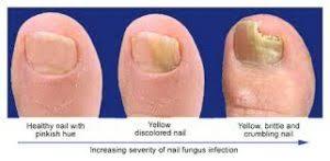 ayurvedic home remes for nail fungus
