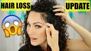 my pcos hair loss update the glam