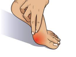 bunion pain relief northwest surgery