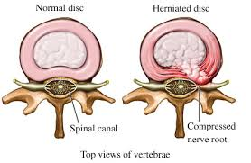 practicing yoga with a herniated disc