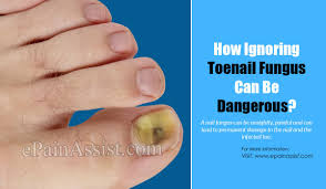how ignoring toenail fungus can be