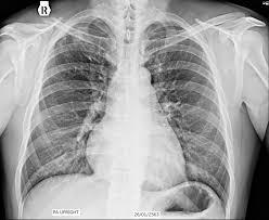 รบกวนอ่านฟิลม์เอ็กซ์เรย์ปอดเกี่ยวกับ TB และช่วยอธิบายด้วยครับ - Pantip