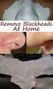 homemade blackheads remover tutorials