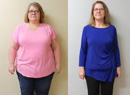 st louis weight loss gastric sleeve