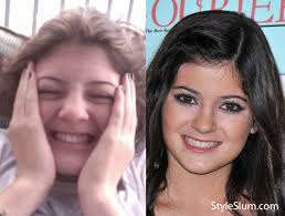 kylie jenner without makeup before and