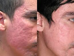 makeup for acne scars face saubhaya
