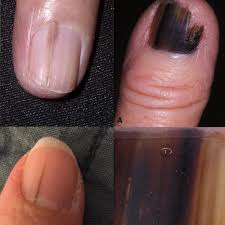 what does nail melanoma look like skin