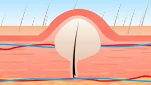 numbing creams for epilators laser