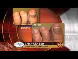 toenail fungus laser treatment best