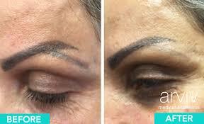 permanent makeup removal near ta fl