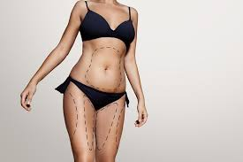 fat removal vs laser liposuction low