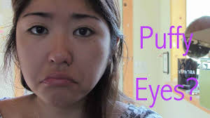 how to get rid of puffy eyes fast you