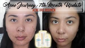 acne org makeupalley saubhaya makeup