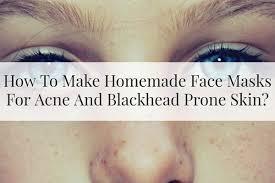 face masks to bat acne blackheads