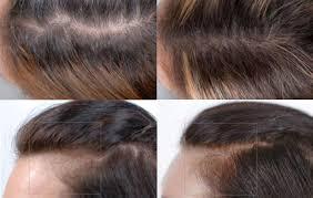 nutrafol for hair loss does nutrafol