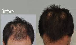acell follicle regeneration and