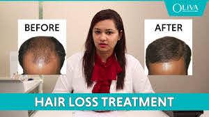 prp treatment for hair fall baldness