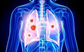 Nuclear Glycogen Linked to Non-Small Cell Lung Cancer