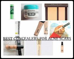 10 best concealers for acne scars and