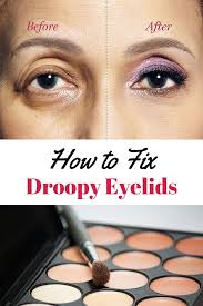 how to fix droopy lids how to correct