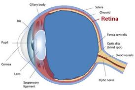 floaters retinal tears and retinal
