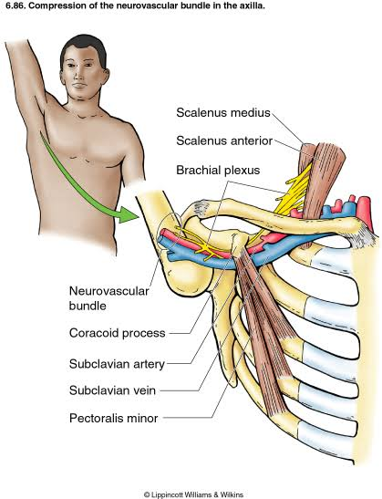 Image result for thoracic outlet syndrome