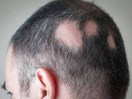 hair loss after surgery how to grow