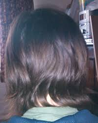 hair loss during chemotherapy my