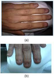nail patella syndrome with infertility
