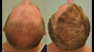 sikos hajbeültetés klinika you