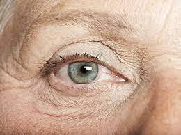 causes of watery eyes in the elderly