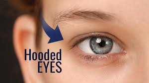 do you know if you have hooded eyes